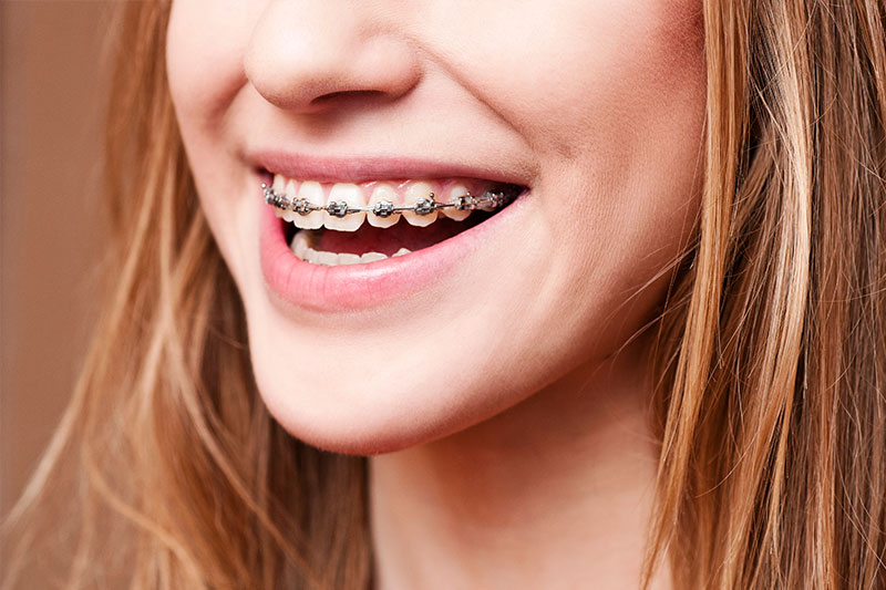 Orthodontics in Palmdale